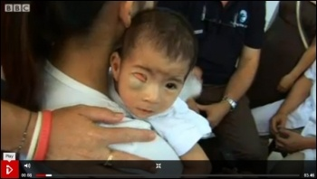 Agent Orange in Vietnam: chemical weapons used by USA have now caused 150,000 childbirth defects according to the Vietnamese Red Cross, photo BBC i-player screen shot