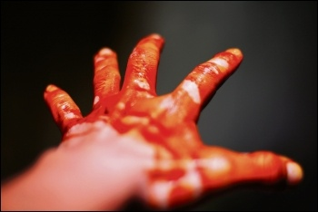Blood on hand, photo by Giang Gong Du (Creative Commons)